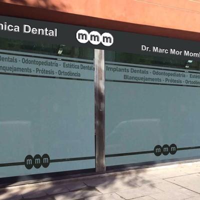 Implantacion clinica dental en Barcelona